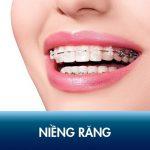 Niềng răng – Kĩ thuật chỉnh nha toàn diện khắc phục hô, móm, khấp khểnh