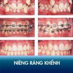 Niềng răng khểnh Kangnam – Hết răng lệch lạc, xiên vẹo nhanh nhất!