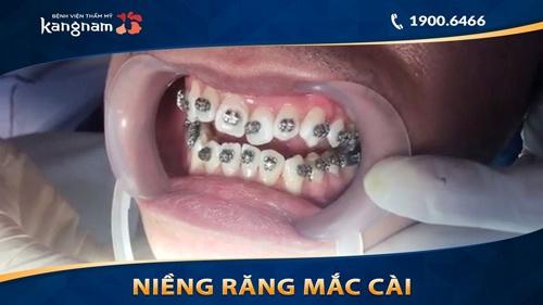 niềng răng mắc cài kim loại tự đóng