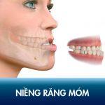 Niềng răng móm – Khắc phục triệt để khớp cắn ngược, chữa dáng mặt lưỡi cày