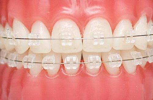 niềng răng sứ