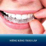 Niềng răng tháo lắp là gì? Đánh giá Ưu – Nhược điểm và Bảng giá chi tiết