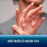 Xem bói nốt ruồi ở ngón tay có ý nghĩa gì với Nam giới, nữ giới?