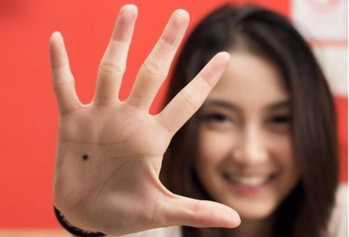 nốt ruồi ở lòng bàn tay trái, phải Đàn ông, phụ nữ có ý nghĩa gì?
