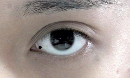 nốt ruồi trong mắt trái, phải Đàn ông, phụ nữ nói lên điều gì?