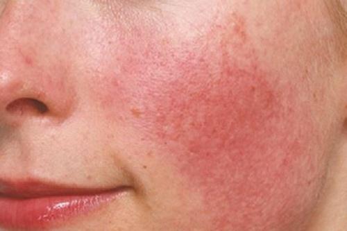 da mặt đỏ và mỏng