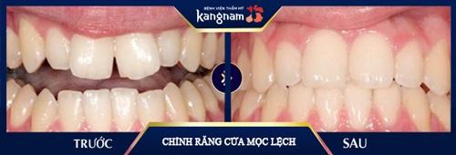 răng cửa mọc lệch hàm trên