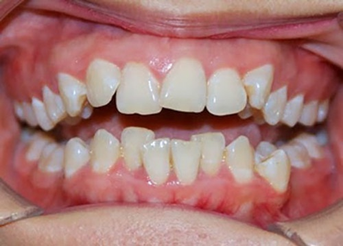 răng cửa mọc lệch vào trong