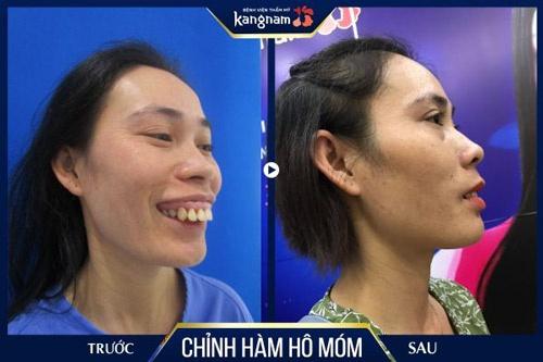 bọc răng sứ hay phẫu thuật hàm hô móm