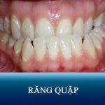 Răng quặp là gì? Cách chữa răng bị cụp vào trong HIỆU QUẢ NHẤT
