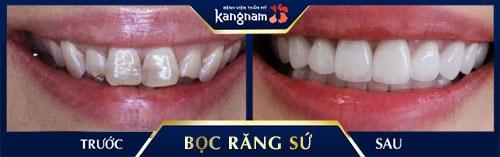 răng sứ cercon là gì