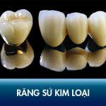 Bọc răng sứ kim loại có tốt không? Chi phí bao nhiêu tiền?