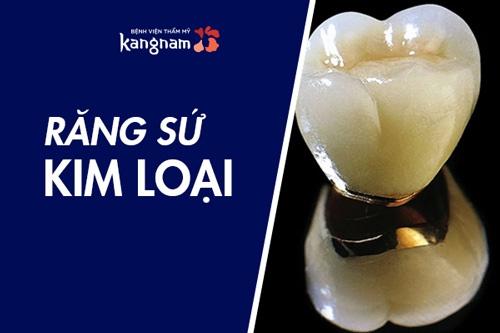 bọc răng sứ kim loại có tốt không