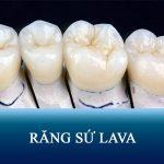 Răng sứ Lava giá bao nhiêu tiền? Đánh giá chi tiết Ưu – Nhược điểm mão sứ Lava