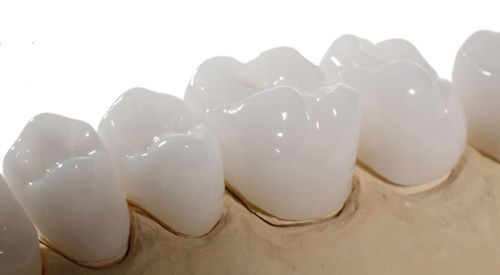 giá răng sứ venus