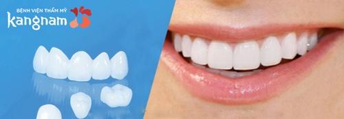 răng sứ venus giá bao nhiêu