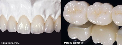 răng sứ Zirconia hay Cercon HT