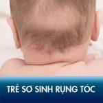 Trẻ sơ sinh bị rụng tóc có nguy hiểm không? Hướng dẫn cách khắc phục hiệu quả!