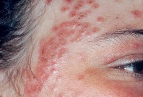 bệnh chàm bội nhiễm ở người lớn