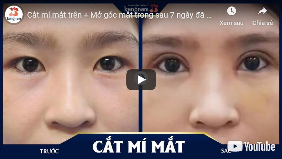 thế nào là đôi mắt đẹp