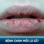 Tìm hiểu bệnh chàm môi là gì? – Nguyên nhân, cách điểu trị tận gốc