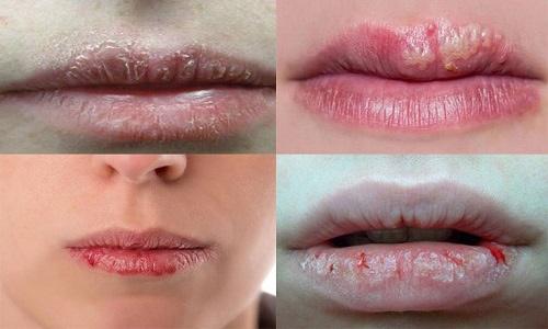 cách trị bệnh chàm môi