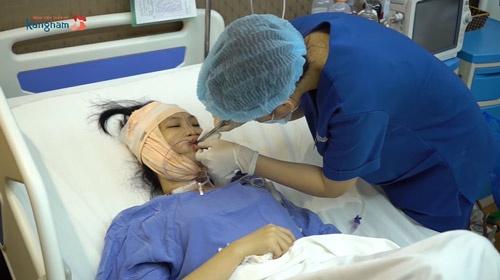 Trang Nhung phẫu thuật thẩm mỹ