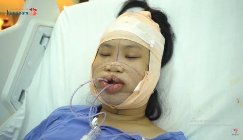 Nguyễn Trang Nhungsau phẫu thuật