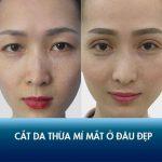 Cắt da thừa mí mắt ở đâu đẹp? Review địa chỉ cắt da thừa mí mắt uy tín tại HN và TP.HCM!
