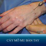 Cấy mỡ mu bàn tay – Giải pháp hàng đầu khắc phục tình trạng bàn tay gầy gò, gân guốc