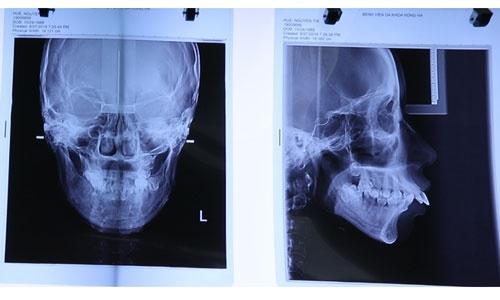 chụp xương nguyễn thị huê