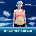 Hút mỡ bụng sau sinh Kangnam – Giải pháp thu gọn tới 35cm vòng bụng trong 2 giờ!