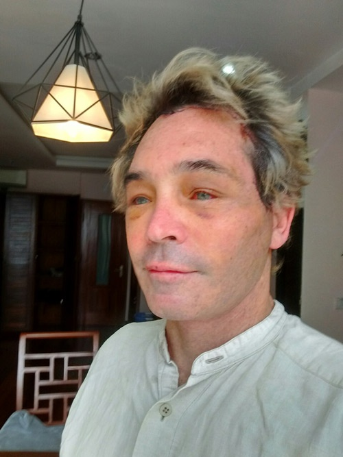 khách hàng úc hậu phẫu căng da mặt kangnam