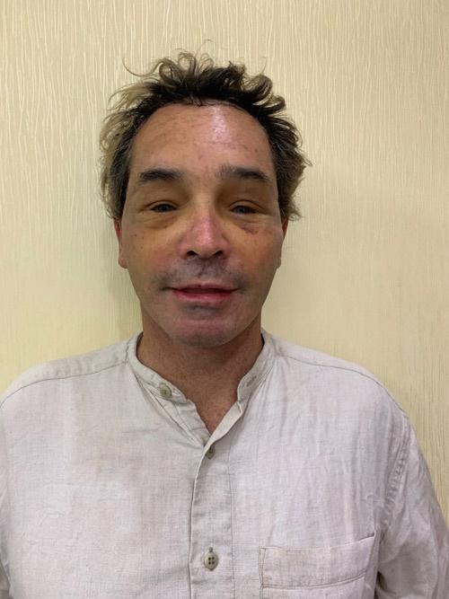 khách hàng úc hậu phẫu căng da mặt