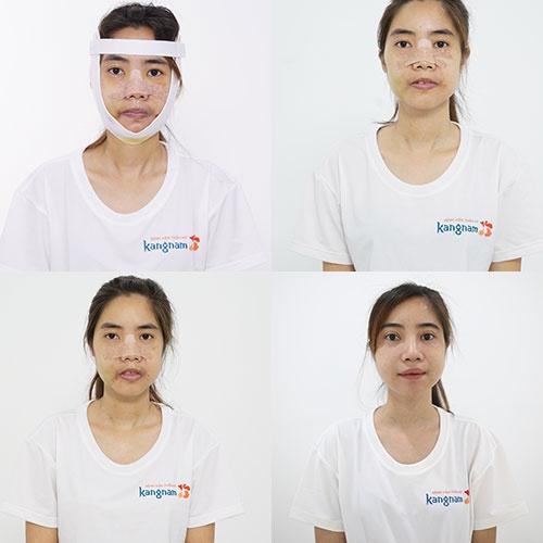 quá trình hồi phục nguyễn thị huê tại kangnam