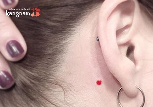 nốt ruồi son sau tai