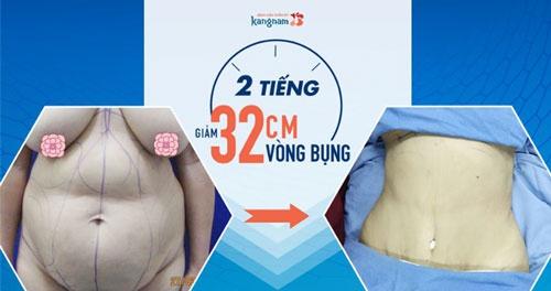 mẫu áo dài cho người mập lùn