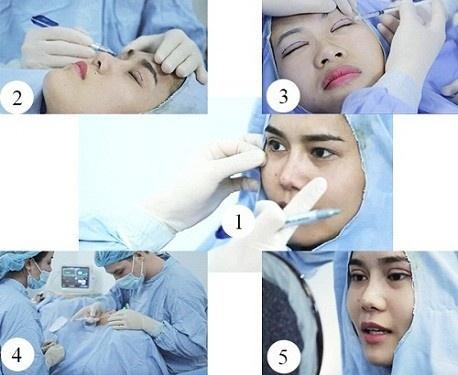 quy trình cắt mí
