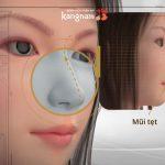 Nâng mũi K-nose – Cải cách công nghệ đến từ Hàn Quốc