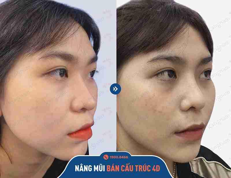 Phản hồi của khách hàng sau khi nâng mũi
