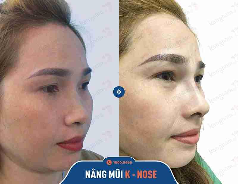 Phương pháp sửa mũi đẹp và an toàn