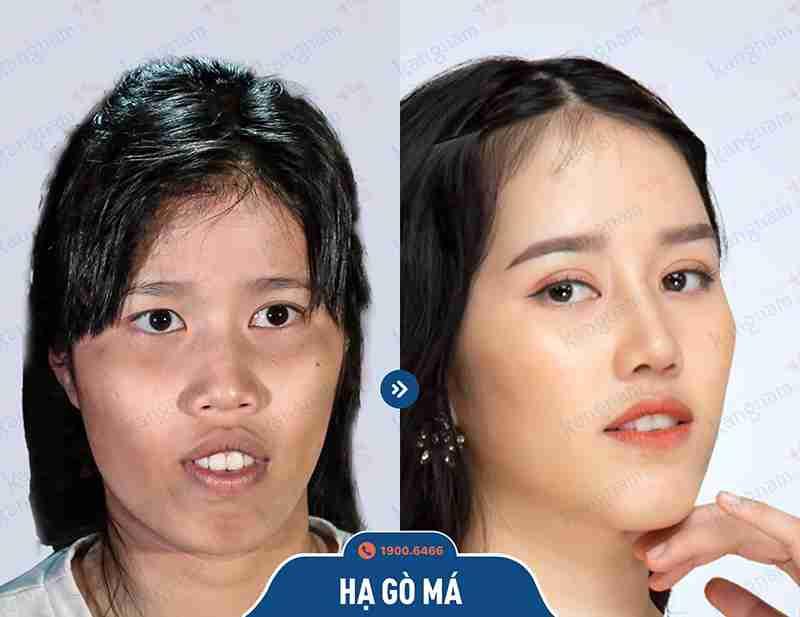 Chia sẻ kết quả khách hàng tại kangnam sau khi phẫu thuật hàm mặt