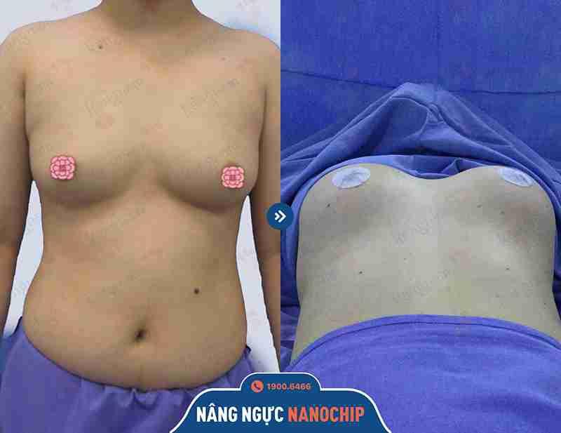 Công nghệ nâng ngực hiệu quả tại kangnam