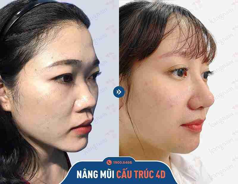 Sự thay đổi rõ rệt của khách hàng sau khi nâng mũi
