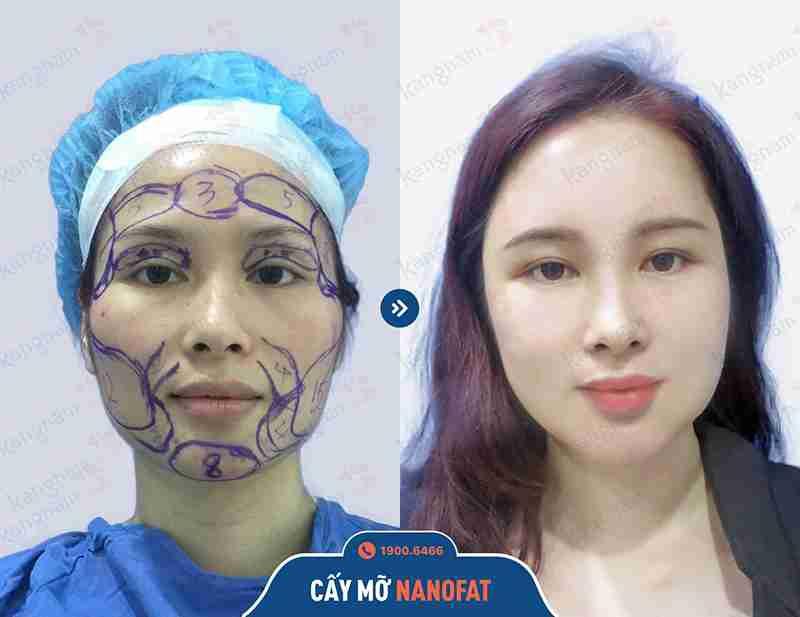 Kết quả ngay sau khi căng da