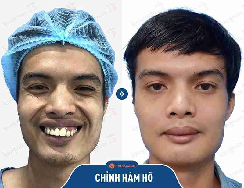 Phản hồi của khách hàng sau khi phẫu thuật hàm mặt