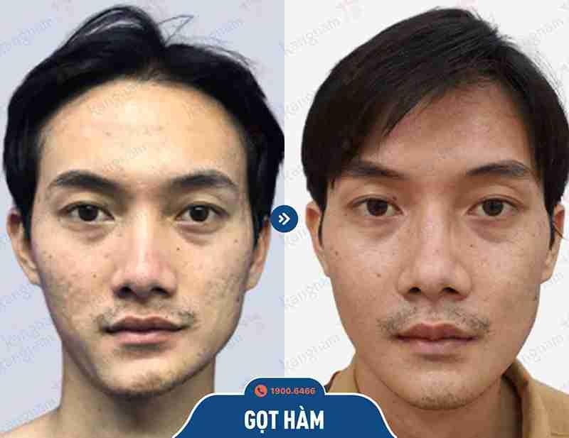 Kết quả sau khi phẫu thuật hàm mặt