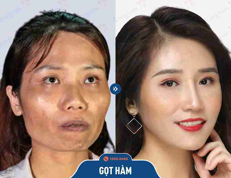 Phương pháp phẫu thuật hàm mặt tại bvtm kangnam