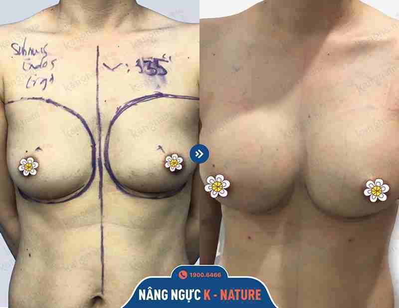 Kết quả khách hàng sau khi nâng ngực tại kangnam