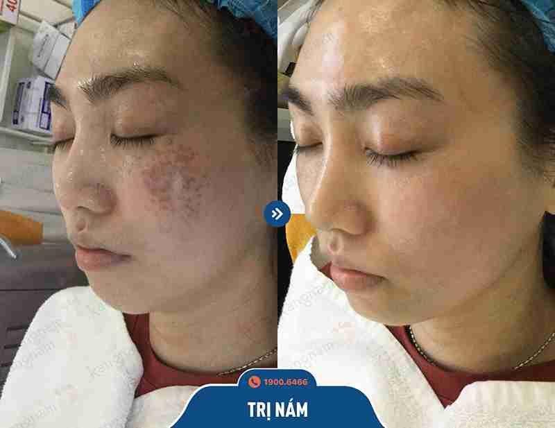 Kết quả ngay sau khi trị nám tại bvtm kangnam